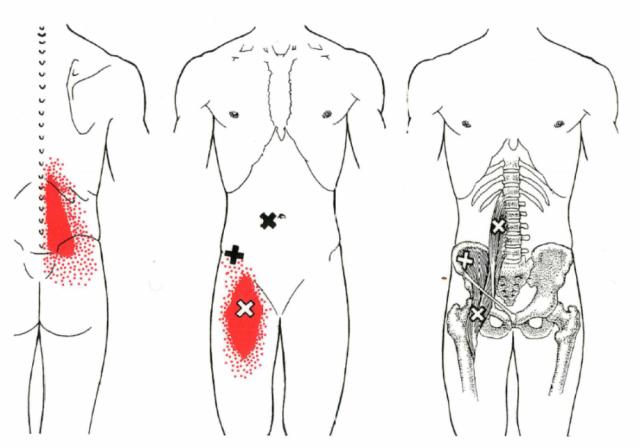 腸腰筋トリガーポイント