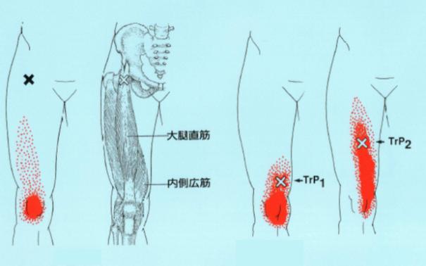 大腿直筋・内側広筋トリガーポイント