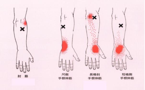 手の伸筋群トリガーポイント